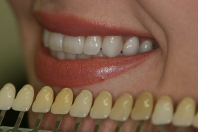 Best Teeth Whitening in Kensington