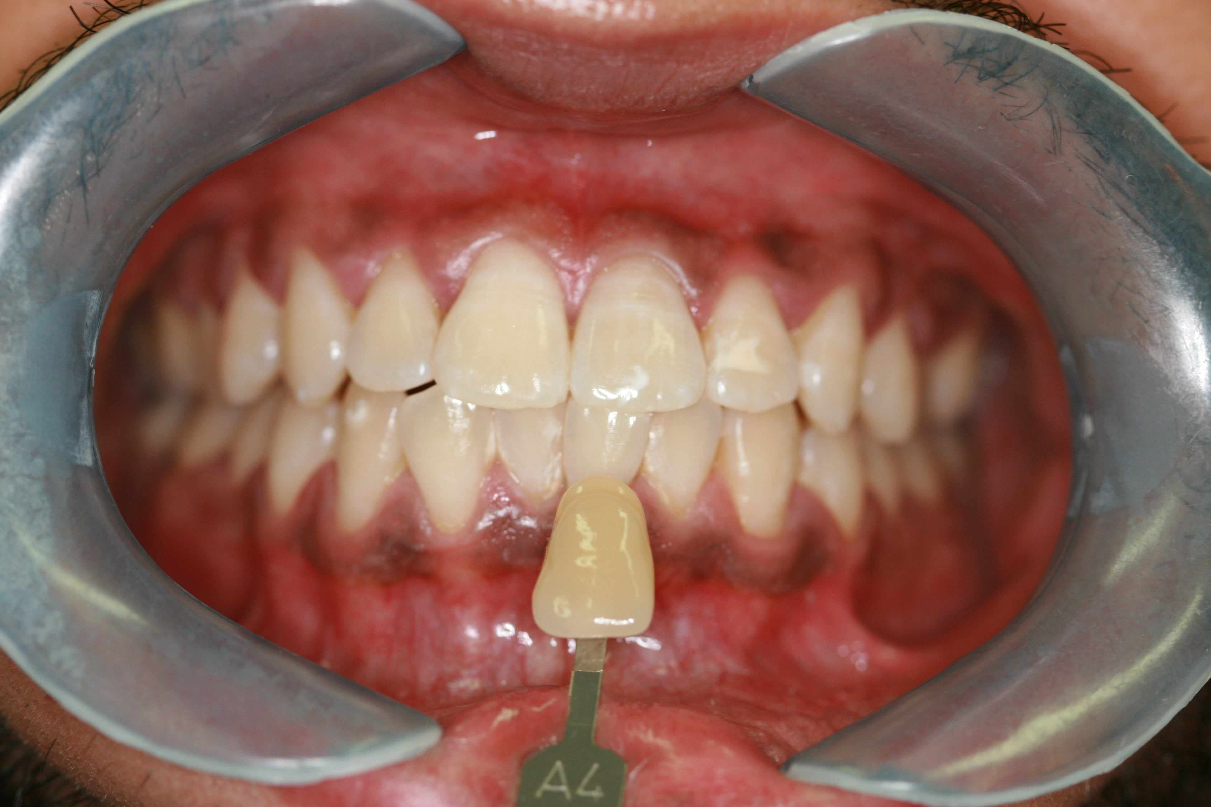 Does Tooth Whitening Actually Work Safe Teeth Whitening