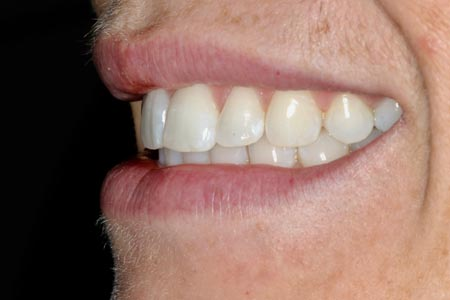 Left View of your Smile, with your teeth fully closed