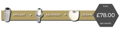 implant finance