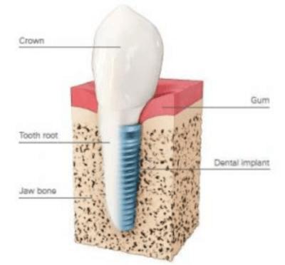 how do implants work