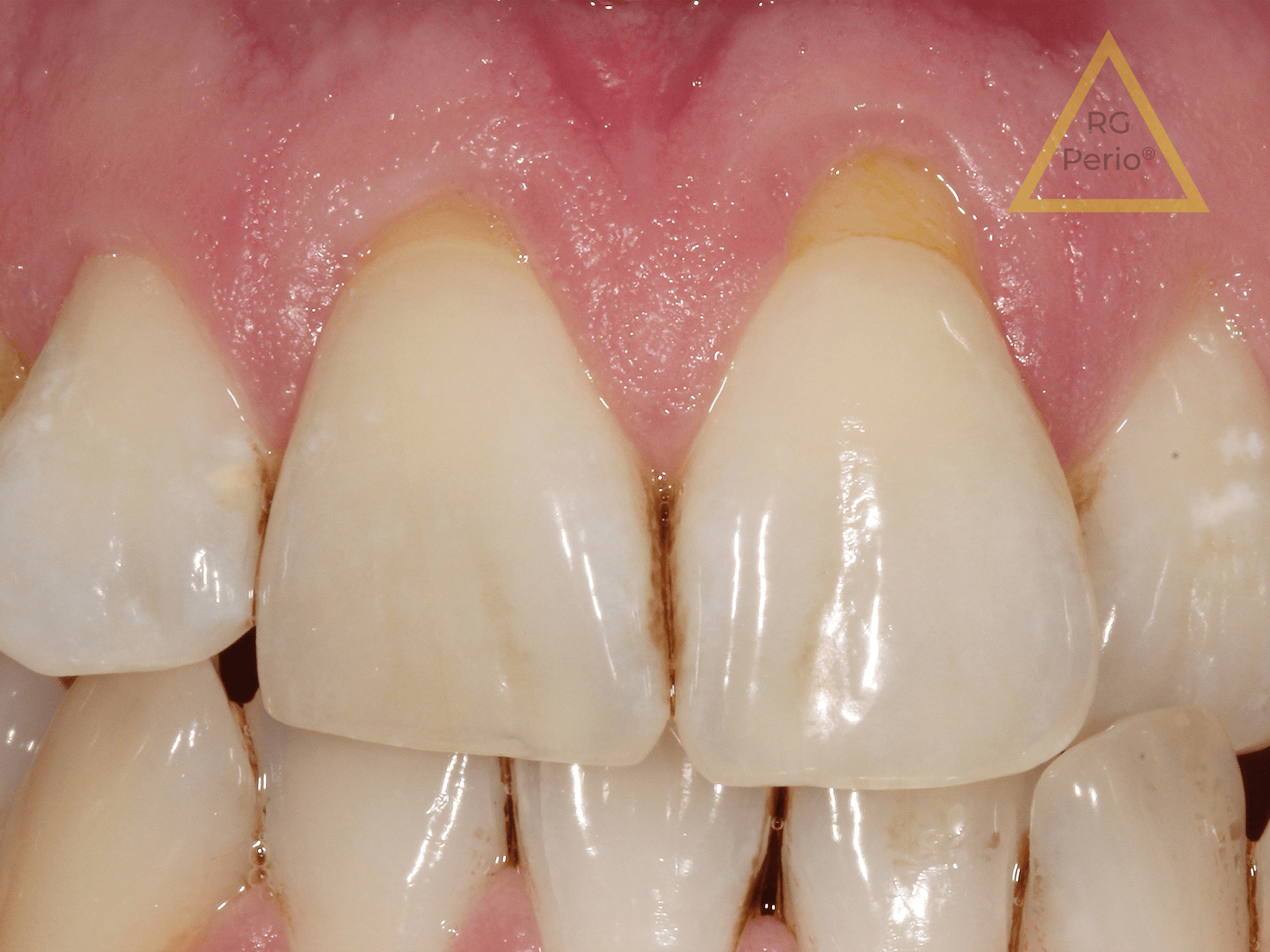 gum recession treatment 2