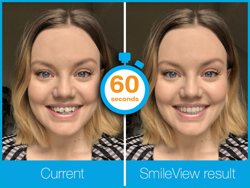 Invisalign+Smileview+in+60+seconds