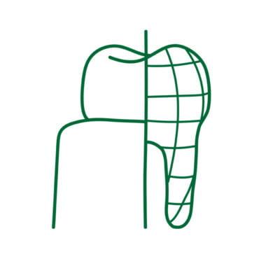 dental implant 3D Planning