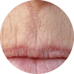 Facial Aestheitcs