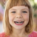 Inherit Bad Teeth