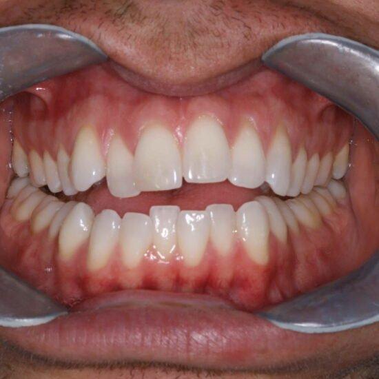 Invisalign Smile Transformation