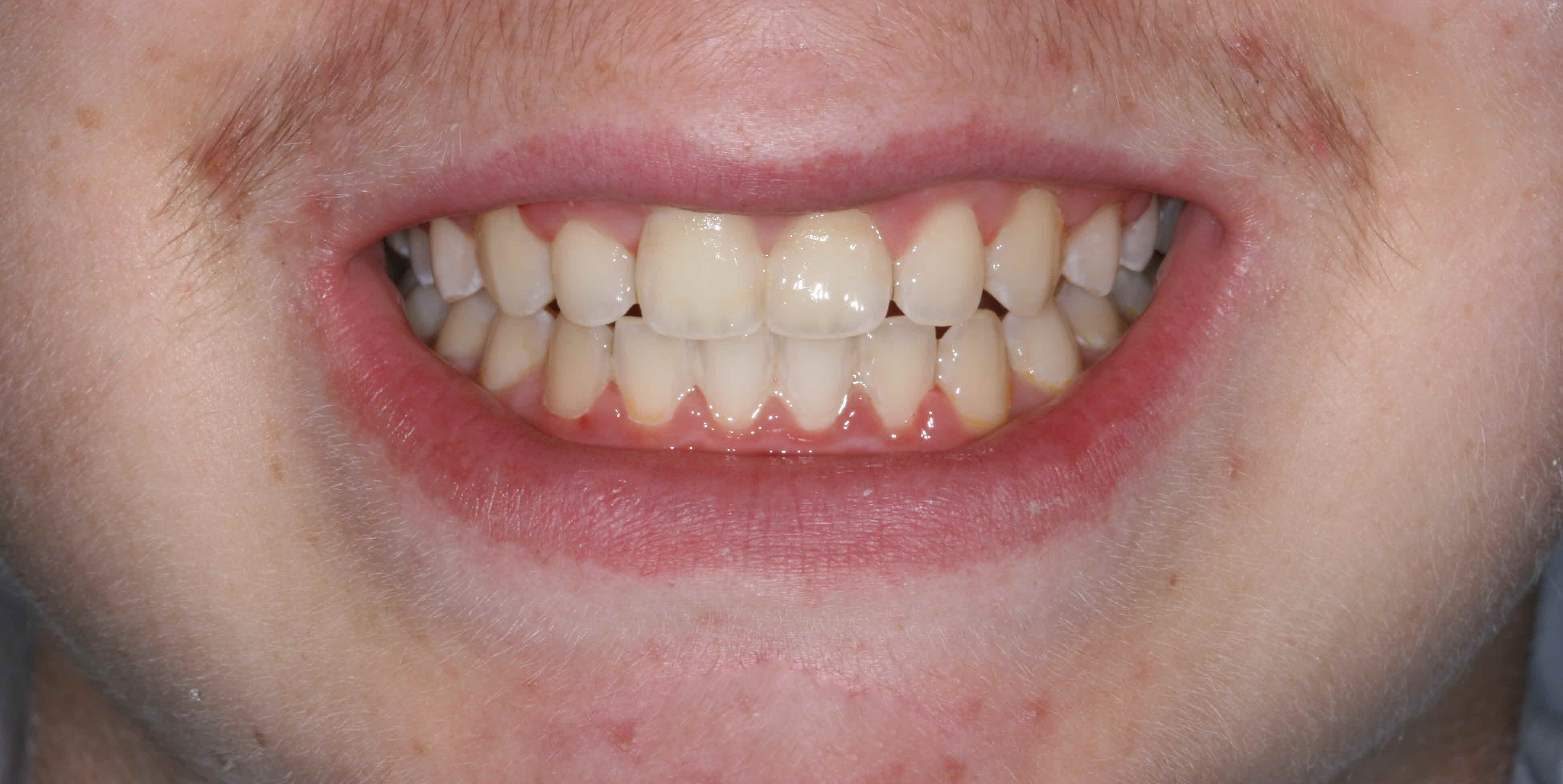 Early Orthodontic Asessment