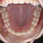 Early Orthodontic assessment